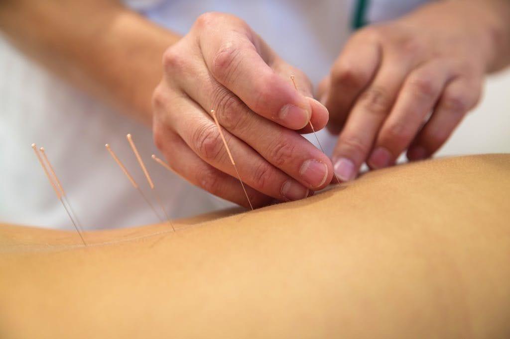 Acupunctures